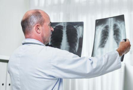 Exames para diagnóstico de problemas respiratórios